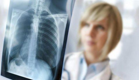 Saiba mais sobre o tecnólogo em Radiologia